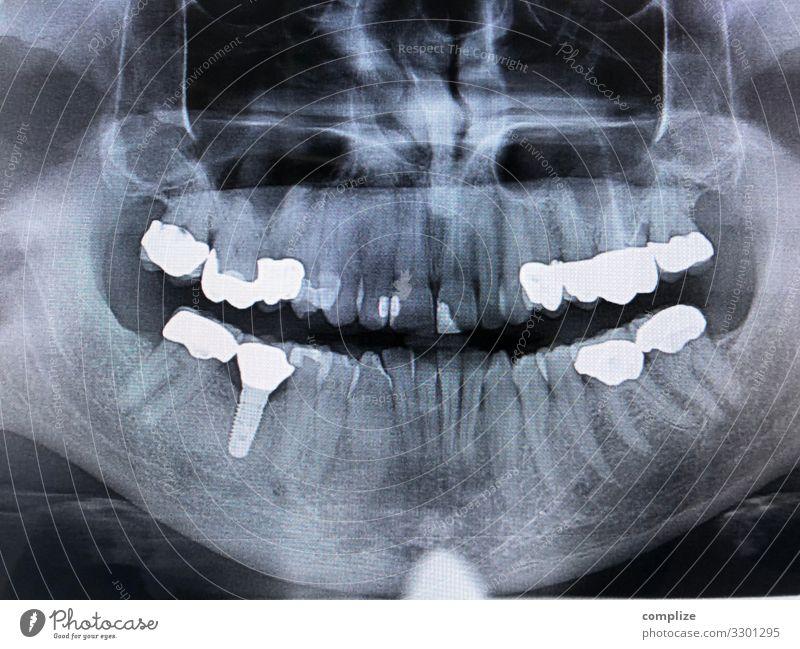 Baustelle Gesundheit Gesundheitswesen Behandlung Wohlgefühl Berufsausbildung Arzt Arbeitsplatz Mann Erwachsene gruselig Schmerz implantat Zahnersatz plombe