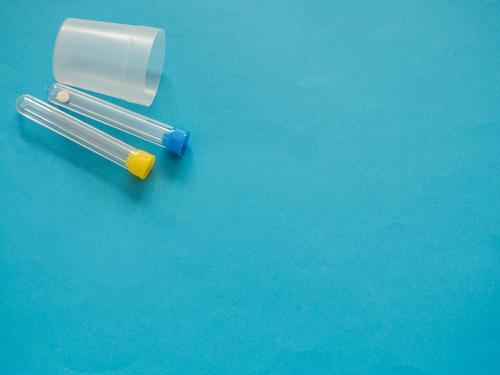 Analyseröhrchen auf blauem Hintergrund mit Kopierraum Flasche Gesundheitswesen Krankheit Medikament Wissenschaften Labor Prüfung & Examen Container Tube