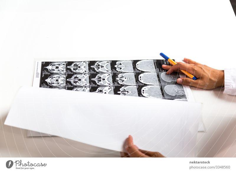 CT-Scans auf dem Schreibtisch und an den Händen des Arztes Frau Erwachsene Hand anstrengen Gesundheit Gesundheitswesen innovativ ct-Scan Radiologie Bild