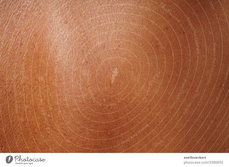 gebräunte reife Haut Bräune Bräunen Dermatologie lentigo senilis solaris Sommersprosse Hautproblem dunkel Pigment pigmentiert Lebensalter Fleck Schaden