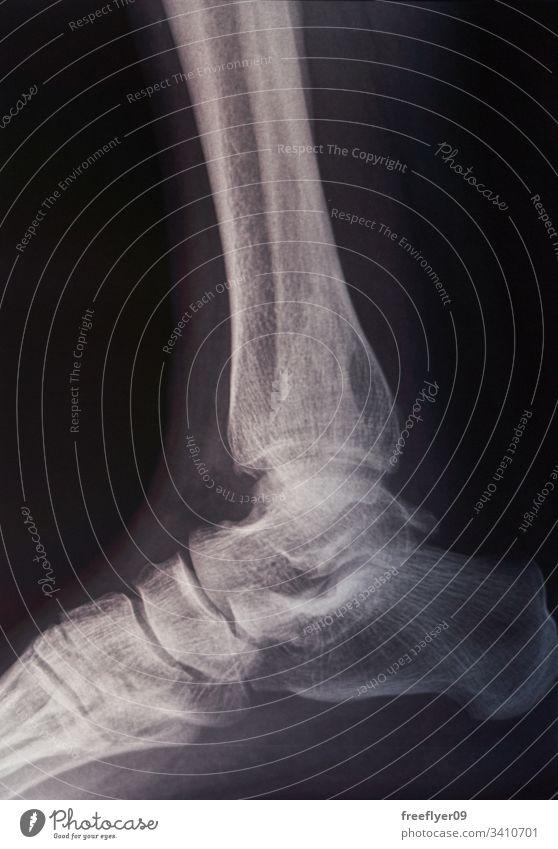Knochenscan eines Fußes Scan röntgen Röntgenaufnahme Medizin Krankenhaus Fraktur Verletzung Rehabilitation Strahlung Tomographie Krankheit Radiologie Gelenk