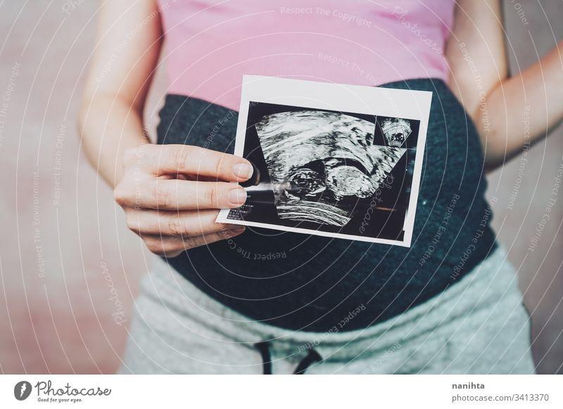 Frau, die den Ultraschall ihres Babys hält schwanger Schwangerschaft Mama Familie Sekunde Stadtteil Trimester Monat 20 Wochen Gesundheit medizinisch Behandlung