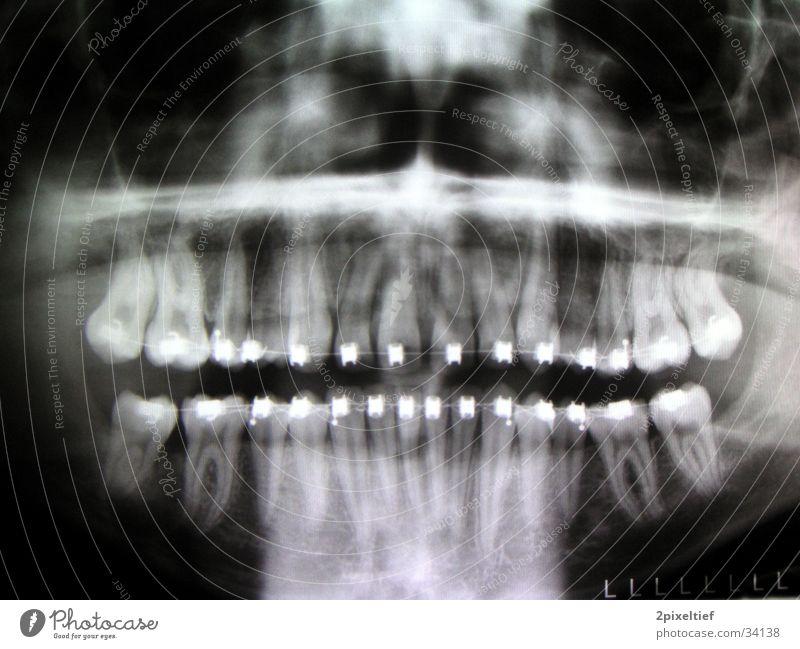 Blechfresse Mann schwarz Metall Zähne Reparatur Kiefer Radiologie