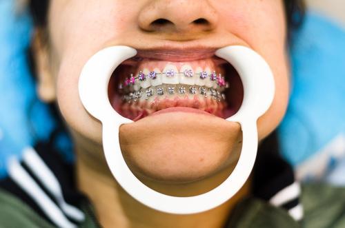 Nahaufnahme der Zähne einer jungen Frau mit Zahnspange und Retraktor für den Mund. Halterungen dental Aufroller Erwachsener Zahnarzt schön Pflege Keramik