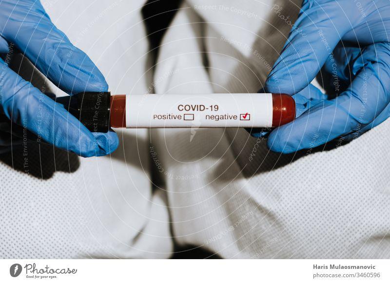 Nahaufnahme eines Reagenzglases mit Blut in der Hand eines Arztes mit negativem Test auf Coronavirus covid-19 Blutprobe Klinik Korona-Epidemie corona italy