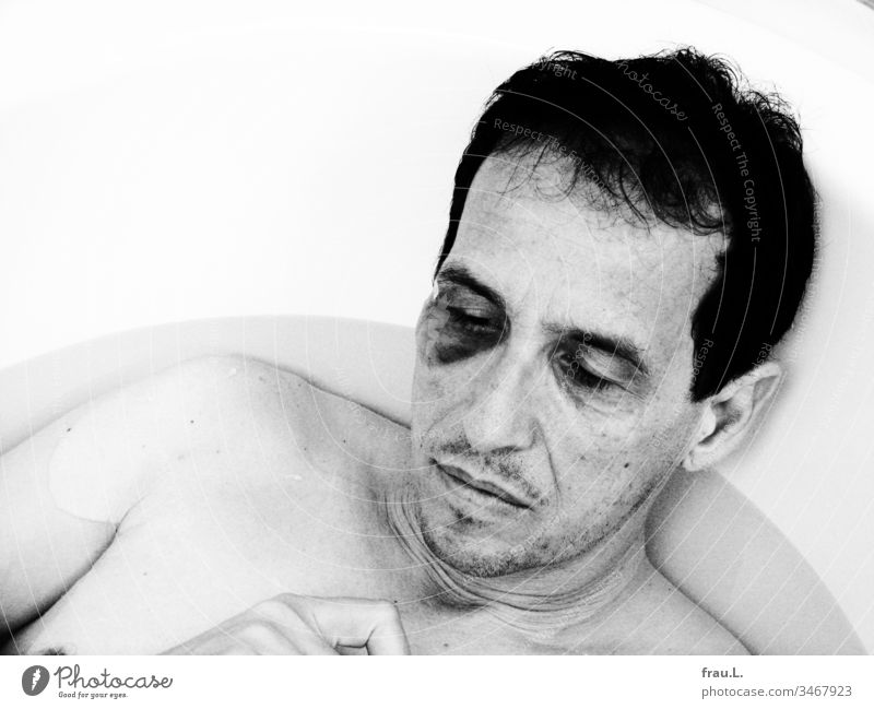 Das Veilchen an seinem Auge war voll erblüht, seine Nerven beruhigte der geschlagene Mann in der Badewanne. Hämatom Blaues Auge Gewalt nackt