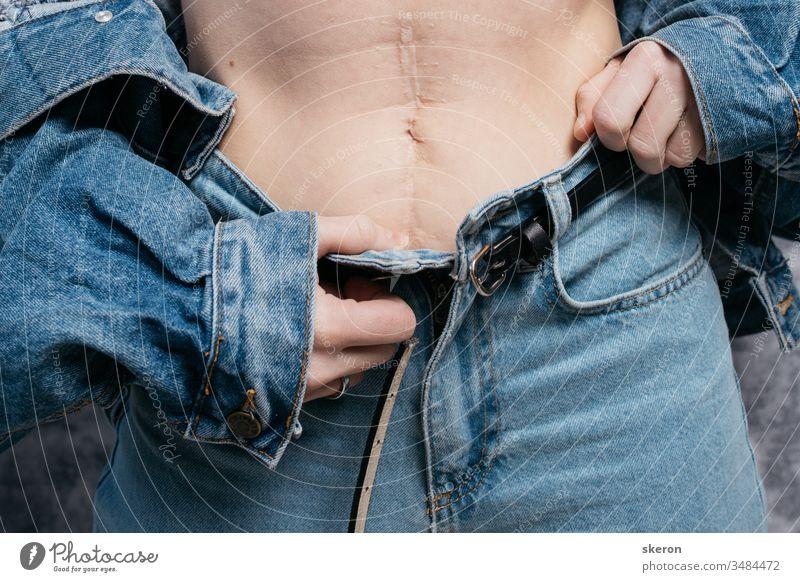 junges, schlankes Mädchen zeigt nach der Operation eine Narbe am Bauch. Frau in modischer Kleidung: Jeansjacke und -hose im Frühling Unterleib abdominal