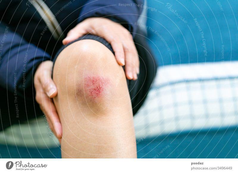 Kratzwunde am weiblichen Knie Nahaufnahme, Konzept für Gesundheitsversorgung und Medizin Schürfwunde Unfall Erwachsener Unterstützung Arme asiatisch groß bluten