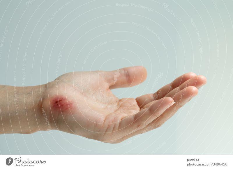 Kratzwunde an der weiblichen Hand Nahaufnahme, Konzept für Gesundheitsversorgung und Medizin Schürfwunde Unfall Erwachsener Unterstützung Arme asiatisch groß