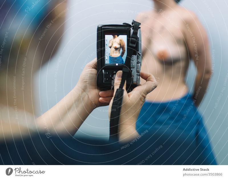 Chirurg, der die Brust der Patientin fotografiert geduldig fotografieren Krankenhaus Mamma-Plastik Frau professionell Medizin nackt Klinik Gerät Apparatur Arzt