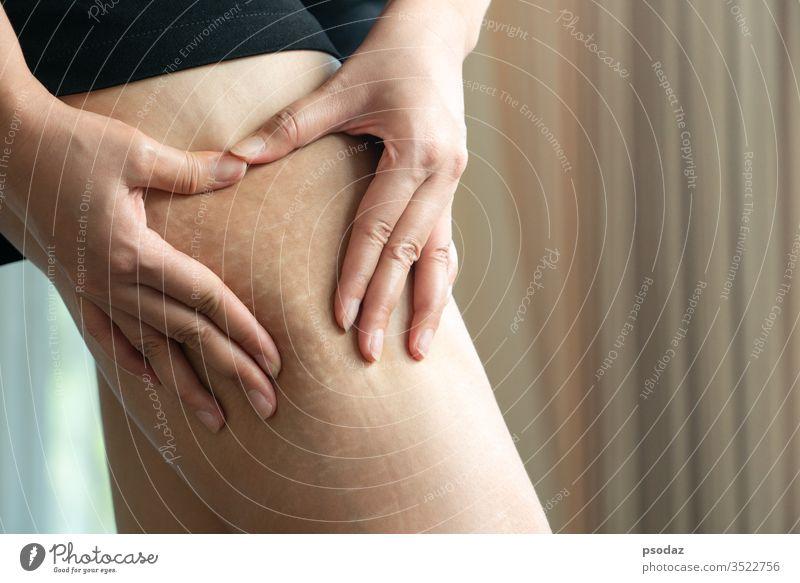 Weibliche Hand hält Fettzellulitis und Dehnungsstreifen am Bein zu Hause, Diät-Stil-Konzept für Frauen Erwachsener Hintergrund schön Schönheit groß Körper Pause