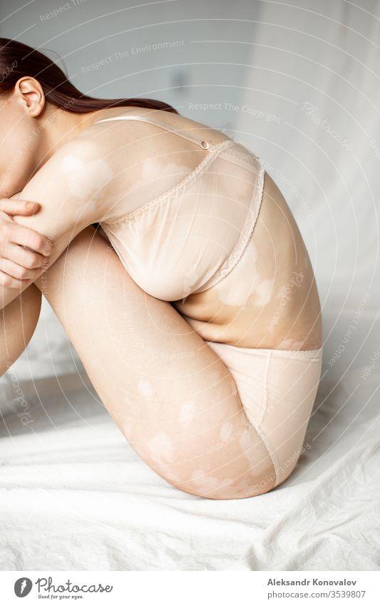 Junge Frau mit bleicher Haut und Vitiligo sitzt auf Stoffhintergrund bei natürlichem Licht in transparenter Unterwäsche Körper Schönheit schlank schön weiß