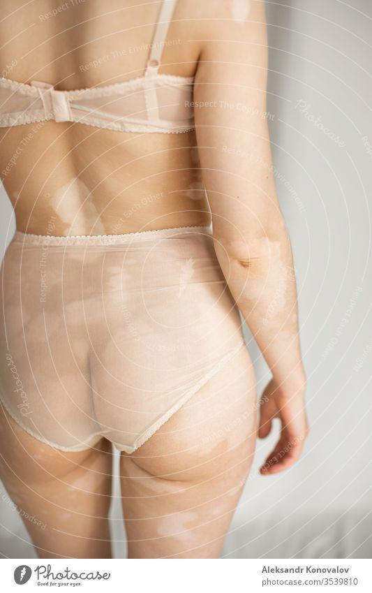 Junge Frau mit blasser Haut und Vitiligo steht auf Stoffhintergrund im natürlichen Licht in transparenter Unterwäsche Körper Schönheit schlank schön weiß nackt