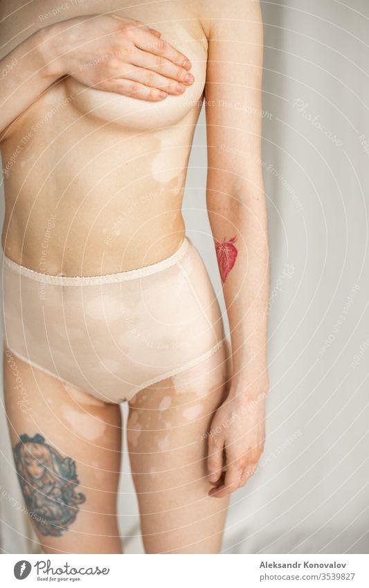 Junge Frau mit blasser Haut und Vitiligo steht auf Stoffhintergrund im natürlichen Licht in transparenter Unterwäsche und hält ihre Brust Körper Schönheit