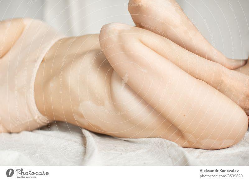 Junge Frau mit blasser Haut und Vitiligo posiert im natürlichen Licht in transparenter Unterwäsche Körper Schönheit schlank schön weiß nackt vereinzelt jung