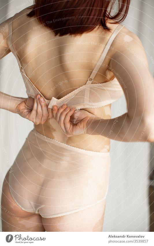 Junge Frau mit blasser Haut und Vitiligo steht auf Stoffhintergrund in natürlichem Licht in transparenter Unterwäsche und schließt ihren BH Körper Schönheit