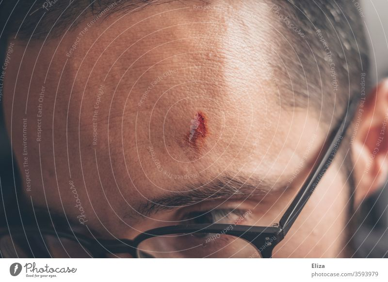 Ein verletzter Mann mit einer Wunde an der Stirn Verletzung Kopf Beule Schmerz Unfall Blut Brille schmerzhaft offen Haut wehtun Nahaufnahme Mensch Heilung