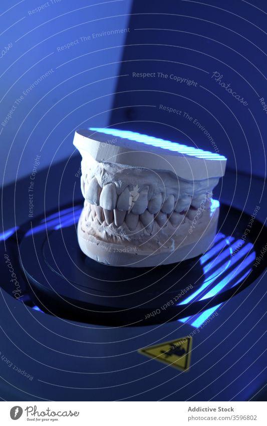 Zähne in moderner Klinik gegossen Zahnarzt gießen Prothesen Zahnersatz Arbeit dental medizinisch Stomatologie Zahnmedizin Gerät Instrument Werkzeug Medizin