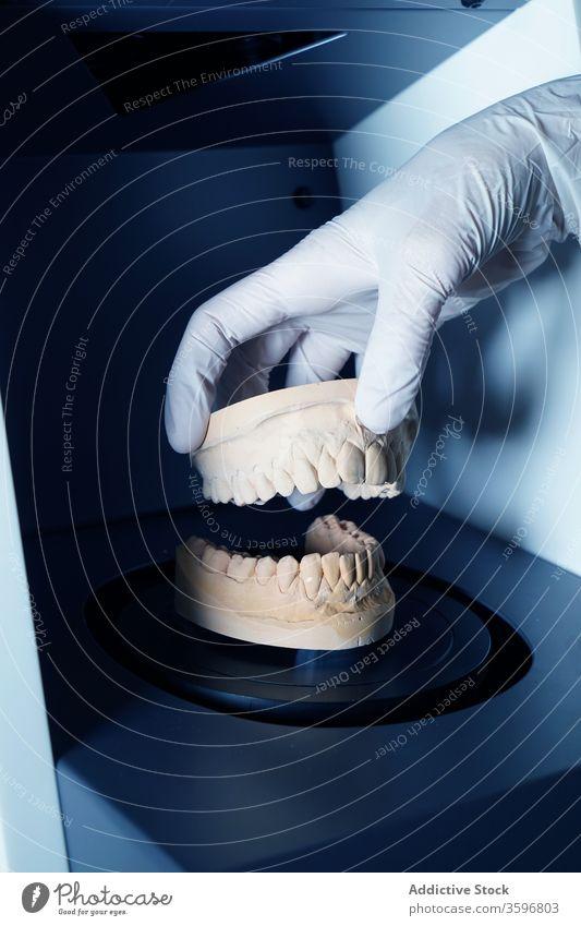 Zahnarzt, der in der Klinik mit gegossenen Zähnen arbeitet gießen Prothesen Zahnersatz Arbeit dental medizinisch Stomatologie Zahnmedizin Gerät Instrument