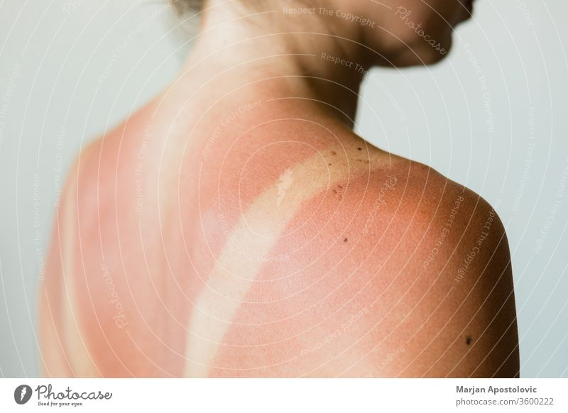Nahaufnahme eines Sonnenbrandflecks auf dem Rücken einer Frau Detailaufnahme Grundriss Spuren Menschen vereinzelt ultraviolett Sonnenlicht Bräunen Schönheit