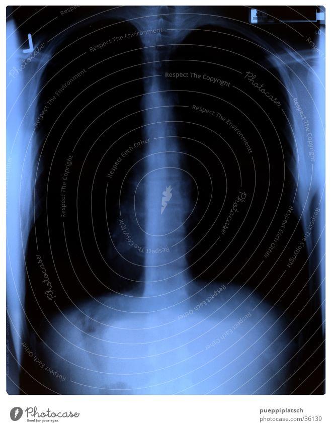 Innenaufnahme Mann blau schwarz Radiologie Lunge Wirbelsäule Brustkorb Röntgenbild