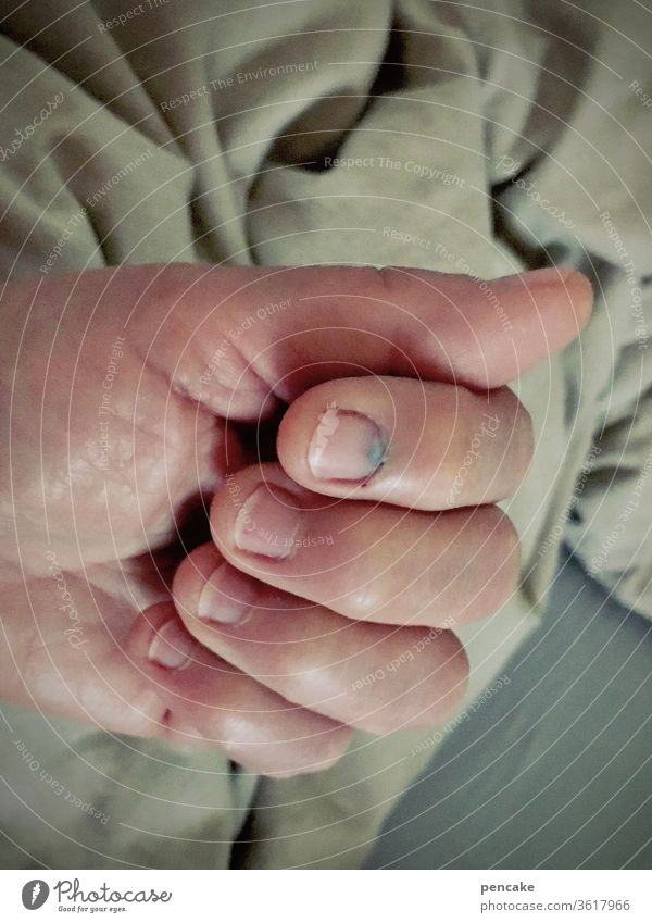 druckerzeugnis | hammer trifft nagel Hand Finger blauer Nagel Nagelbett Verletzung Hämatom Haushaltsunfall Druck Schlag Schmerz Unfall Hammer Fingernagel