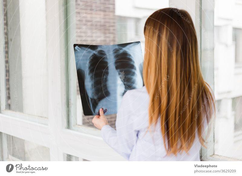 Eine Ärztin untersucht ein Röntgenbild einer Lungenaufnahme. Ansicht von hinten Krankenpfleger Frau Mädchen Arzt röntgen Krankenhaus medizinisch Stethoskop weiß