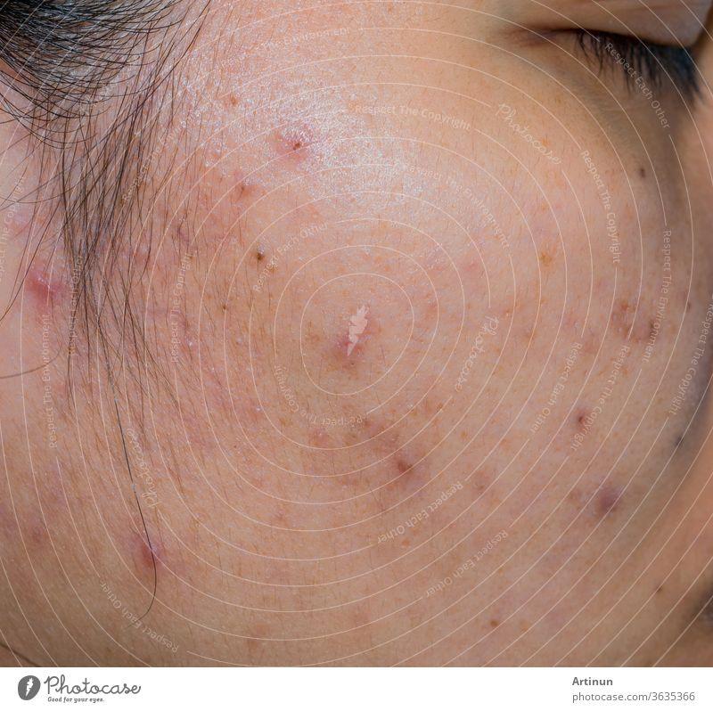 Akne und Aknefleck auf der fettigen Gesichtshaut einer Asiatin. Konzept vor der Aknebehandlung und Gesichtslaserbehandlung zur Beseitigung des dunklen Flecks nach der Akne. Geschlossene Komedonen und offene Komedonen auf der Gesichtshaut