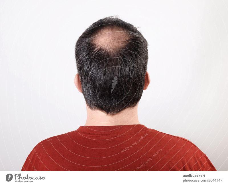 Haarausfall Androgenetischer Haarausfall Alopezie Haare kahle Stelle Oberkopf Tonsur Hinterkopf Mann Kopf Alterung Kahlheit anonym Gesundheit Erwachsener