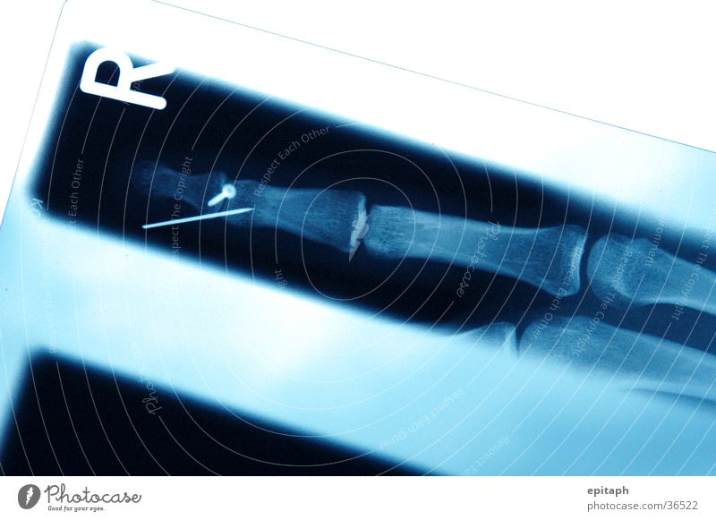 they make my finger break blau Finger Wissenschaften Schraube Skelett Radiologie