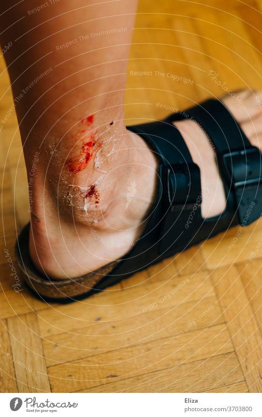Fiese Wunde am Bein blutig Mann Sprühpflaster Schmerzen wehtun Knöchel Fuß Blut Erwachsener Haut Hautfetzen