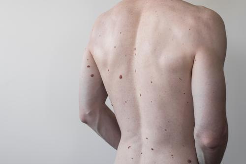 Männlicher Torso mit vielen Muttermalen, Körper Gesundheit Leberfleck Rücken Dermatologie Haut medizinisch Melanom Pflege Fleck Krankheit nackt menschlich