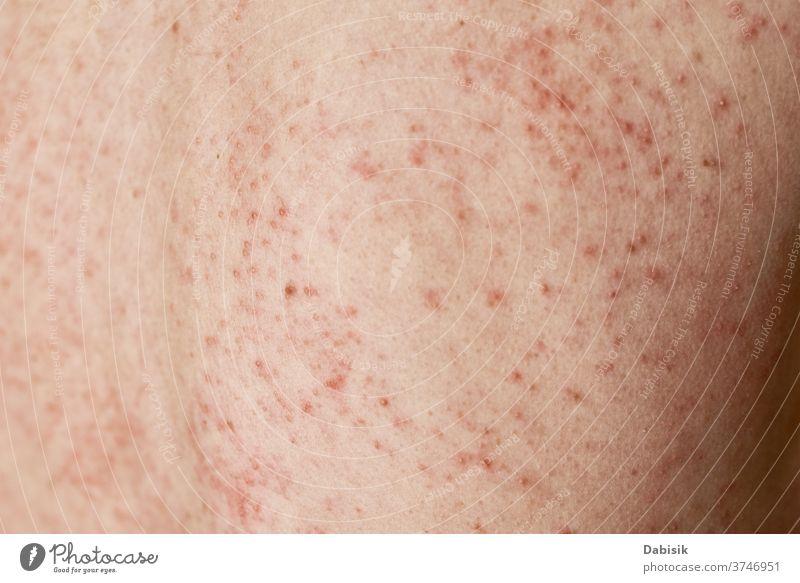 Allergischer Ausschlag auf der Haut. Frau mit dermatologischem Problem auf der Rückenhaut überstürzt Allergie Hautausschlag Dermatologie Infektion Krankheit
