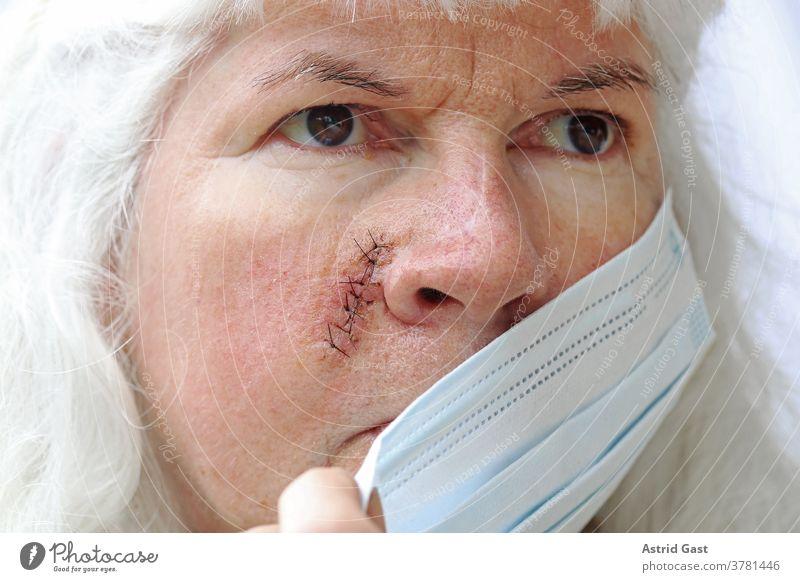 Maskenpflicht bei Verletzungen und Operationen gesicht haut frau operation narben naht fäden maske maskenpflicht corona covid 19 op-maske sicherheit virus