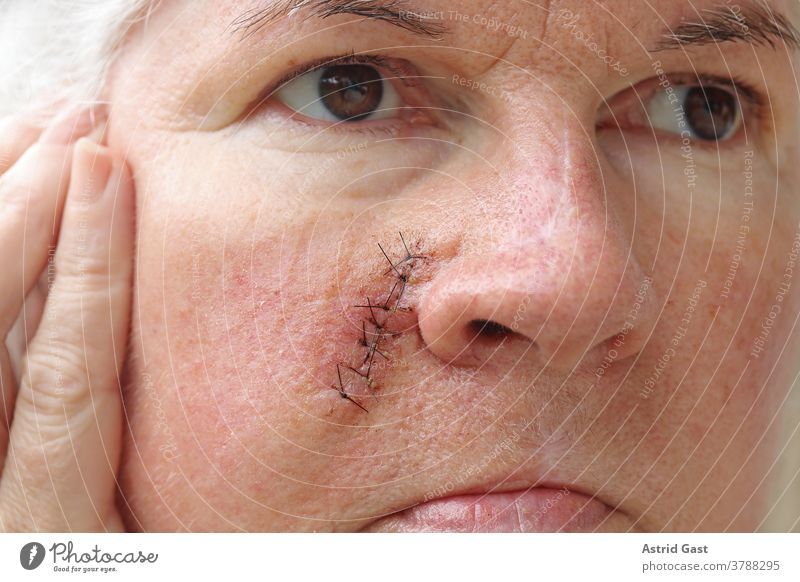 Eine ältere Frau hat eine Operationsnarbe im Gesicht gesicht haut frau seniorin operationsnarbe narben naht fäden unfall nähen riss operationsnaht hautkrankheit