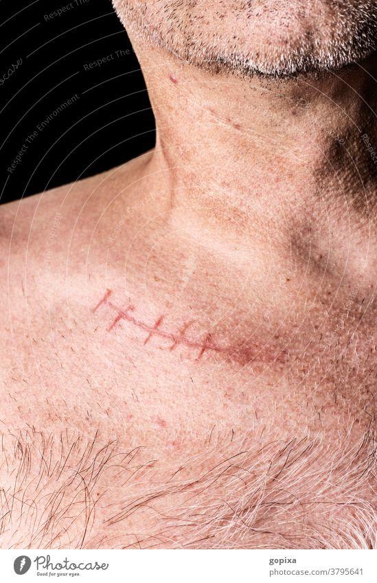 Oberkörper eines Mannes mit Narbe Schlüsselbein Knochen clavicula Schlüsselbeinknochen Fraktur Knochenbruch Operationsnarbe Medizin Behandlung Chirurgie Heilung