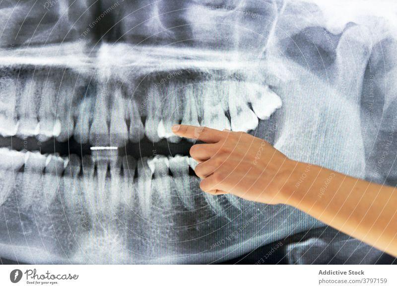 Ethnischer weiblicher Zahnarzt im medizinischen Raum mit Röntgenstrahlen Röntgenbild dental Klinik Arzt Frau Zahnmedizin Zähne geduldig Kiefer Information