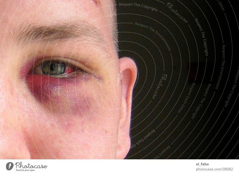 multikulti Konflikt & Streit Mensch Blaues Auge (Bluterguß) Veilchengewächse schlägerei ...