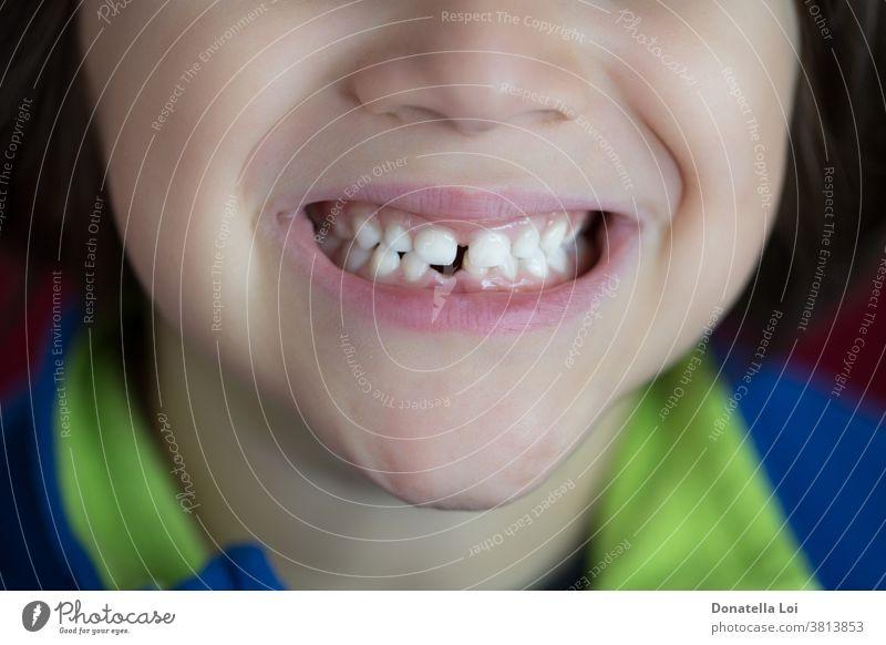 Sturz des ersten Zahnes des Babys abwesend Kaukasier Kindheit Sauberkeit Nahaufnahme fallen erste Zähne Glück Gesundheit Hygiene Schneidezähne unvollendet
