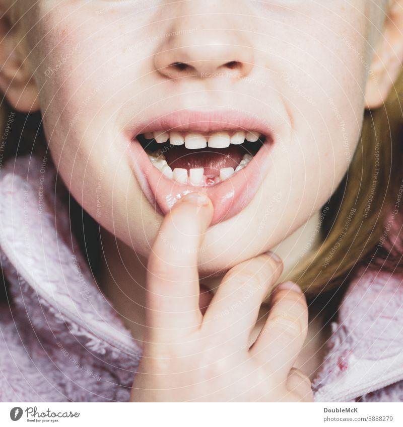 Mädchen zeigt Zahnlücke, da sie den ersten Milchzahn verloren hat Milchzähne Kind Kindheit Zähne Mund Farbfoto Lippen 3-8 Jahre Kopf Gesicht Mensch Fröhlichkeit