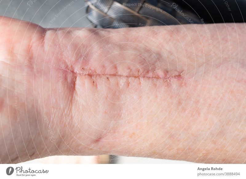 Narbe am Handgelenk einer Frau Chirurgie Operation Gesundheit Dermatologie Medizin Schmerz menschlich Krankenhaus geduldig Wunde Unfall Haut Behandlung Pflege