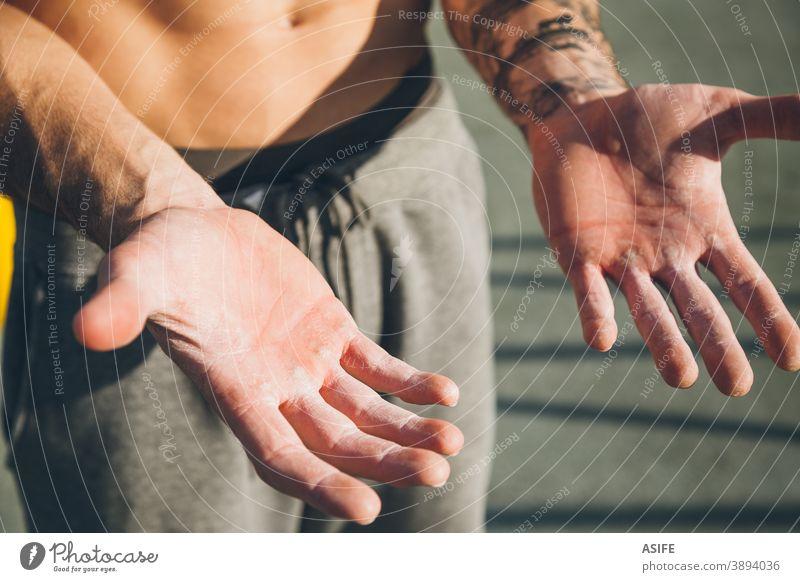 Hände mit Hornhaut eines jungen Sportlers der Gymnastik callus callosity calisthenics Härte Magnesium Pulver Kreide Athlet Mann Muskeln Stärke Kunstturnen