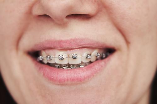 Frau mit Zahnspange, Nahaufnahme kieferorthopädisch dental Klammer Halterung Zahnarzt Zähne Lächeln Behandlung Schönheit Mund Gesundheit schön Pflege Lippen