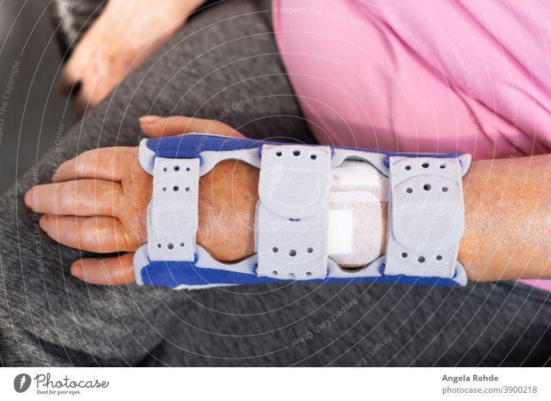 Neu operierter gebrochener Arm in einer Schiene schienen Arme Medizin Schmerz menschlich geduldig Unfall Pflege wehtun Fraktur medizinisch Knochen Chirurgie