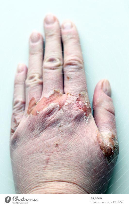 Brandwunde Wunde Haut verbrannt Feuer Flamme Gefahr verwundet Hand Finger krank verletzt Verletzung rosa türkis pastell geschwollen Verbrennung Wundheilung