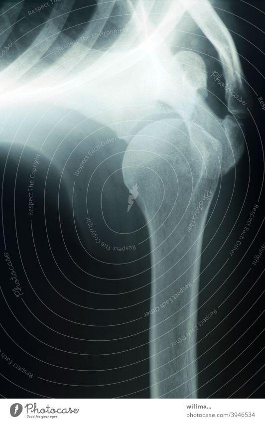 ungesund und doch nützlich - das Röntgen Röntgenbild Gelenk Schultergelenk Radiologie Diagnostik Technik & Technologie Gesundheitswesen Skelett Knochen