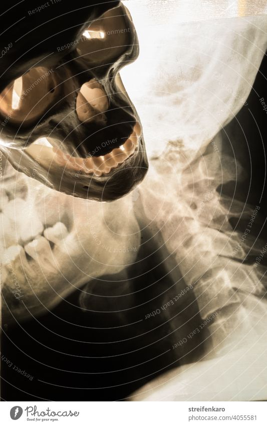 Begegnung - Röntgenbild von Schädel und Halswirbelsäule trifft auf einen menschlichen Schädel Knochen Mensch Skelett Wirbelsäule Medizin Sterblichkeit Kopf