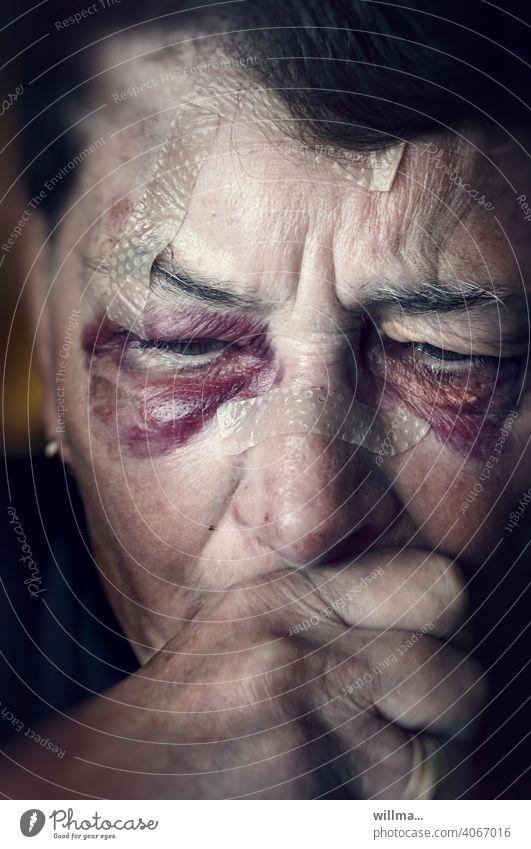 Diagnose: Brillenhämatom Hämatom Verletzung blaues Auge Pflaster Sturz Unfall verletzt Schmerz Heftpflaster Husten Hustenanfall Hand vor den Mund Schmerzen