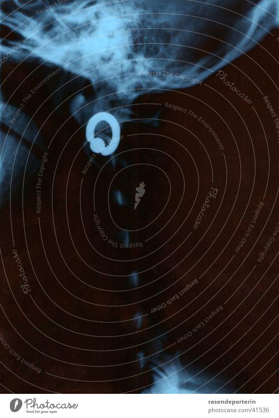 uups, mein ohrring... Piercing Röntgenbild Strahlung Wirbelsäule Wissenschaften Ohrringe Kopf Radiologie
