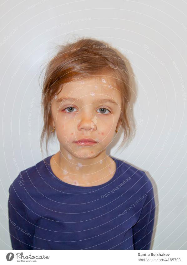 Trauriges kleines Mädchen krank mit Varizellen-Virus oder Windpocken Blasenausschlag im Gesicht viral pädiatrisch in die Kamera schauen